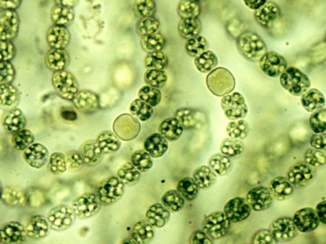 cyanobacteria_microscope_big-cagov waterboards